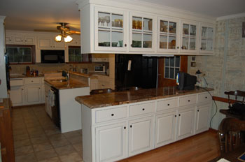 Before and after refacing photos